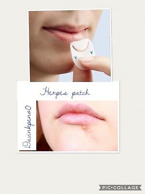 Patch  Bouton  Invisible  Contre Herpes ( Bouton De Fievre ) X15
