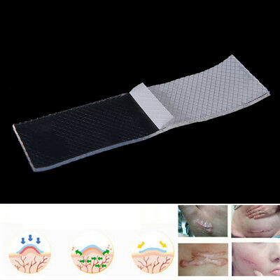 Silicon Gel Scar Sheet Therapy Remove Trauma Burn Patch Reusable Skin Repair FT