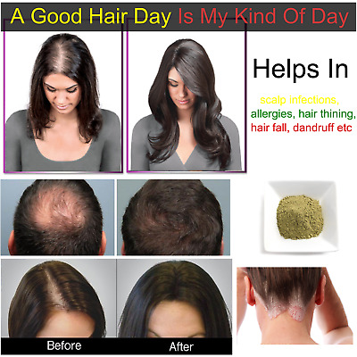 THE BEST HAIR LOSS TREATMENT FOR MEN AND WOMEN REGROW HAIR REGROWTH Naturally