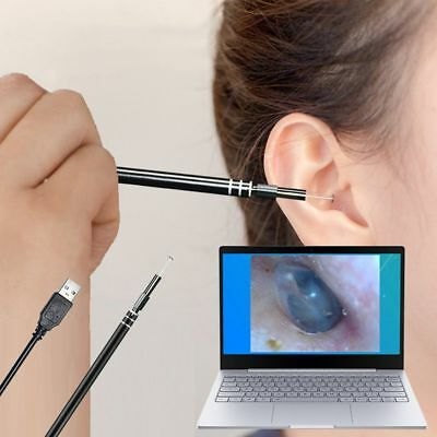 USB Ear Cleaning Endoscope HD Visual Ear Spoon Earpick With Mini Camera QC