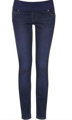 Topshop Moto Jamie High Waist Ankle Maternity Jeans. Size 8/MSRP $75 NM02418