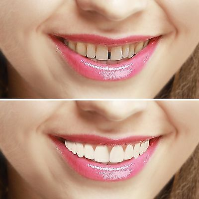 Imako Original Cosmetic Teeth Cover Instant Hollywood Smile. Natural or Bleached