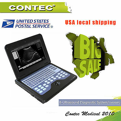 USA FEDEX SHIPPING CONTEC CMS600P2 laptop B-Ultrasound Scanner 3.5M convex probe