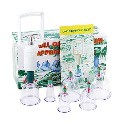 2 Sets of 6 Cups &Pump Cupping Acupuncture Hijama Chinese Therapy Treatment UK