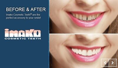 IMAKO Cosmetic Teeth.  Natural or Bleached. Instant Smile
