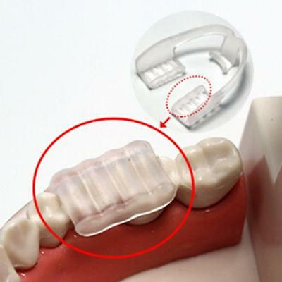 Dental Mouth Guard for Teeth Grinding Bruxism Stop Teeth Clenching Stop Grinding