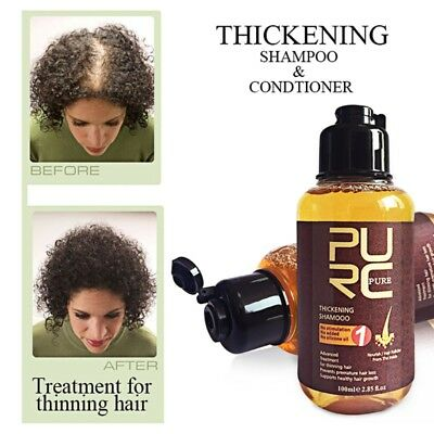 1P PURC Herbal Ginger Hair Shampoo Essence Treatment For Hair Loss Help Regrowth