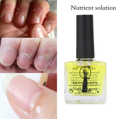 10ml Pro Nail Treatment Oil 10ml Cuticle Nail Care Manicure Treatment Nourish