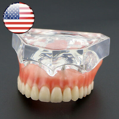 Dental Study Model Overdenture Superior with 4 Implants Demo USA #6001 Clear