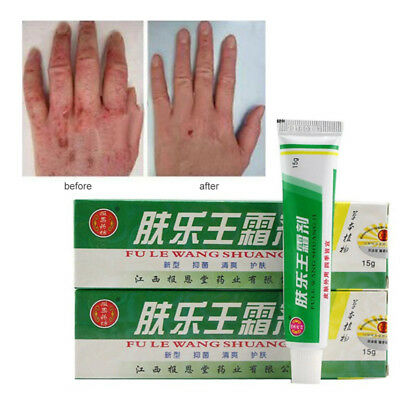 Pruritus Herbal Creams Dermatitis Eczema Psoriasis Skin Care Ointment
