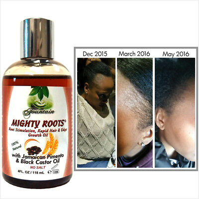 Fountain Mighty Roots with Jamaican Pimento and Black Castor Oil for Hair Growth
