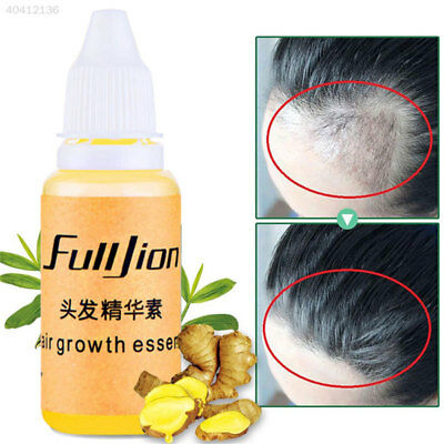 Fast Baldness Alopecia Hair Care Hair Growth Fluid 20ml Hair Loss Treatment
