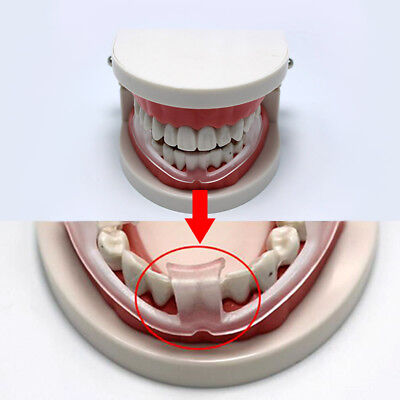 Anti Snoring Anti Snore Mouthpiece Sleep Stop Teeth Grinding Body Health Bruxism