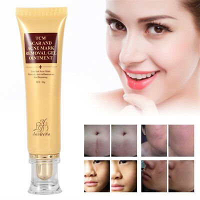Hot 30g TCM SCAR AND ACNE MARK REMOVAL GEL OINTMENT (LanBeNa) Acne Scar Cream