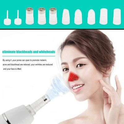 Charging Pore Cleaner Blackhead Vacuum Peeling Dermabrasion Facial Skin Machine