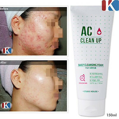 ETUDE HOUSE AC Clean-Up Daily Cleansing Foam 150ml / Acne & Blemish Cleanser