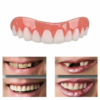 Smile Perfect Snap TOP Veneers Instant Cosmetic Teeth Cover Fix Cap Bottom On UK