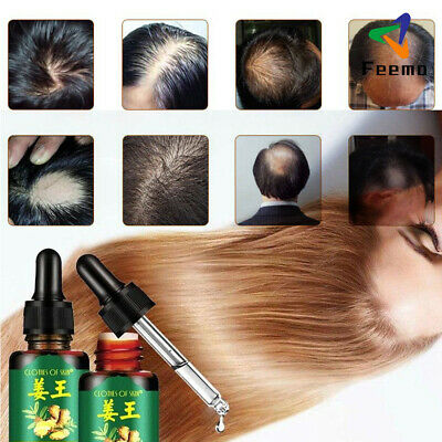 30ML ReGrow 7Day Ginger Germinal Hair Growth Serum Oil Anti HairLoss Restoration