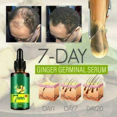 UK Natural ReGrow 7 Day Ginger Germinal Hair Growth Serum Hair Loss Treatment