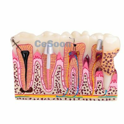 Dental Caries Anatomy Teeth Model #4029 Teaching Study 6 Time Caries Comparation