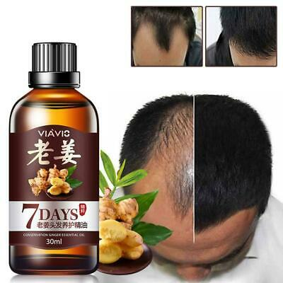 30ml Hair Loss Growth Essential Oil Regrowth Serum Treatment Care Ginger Li N2N7