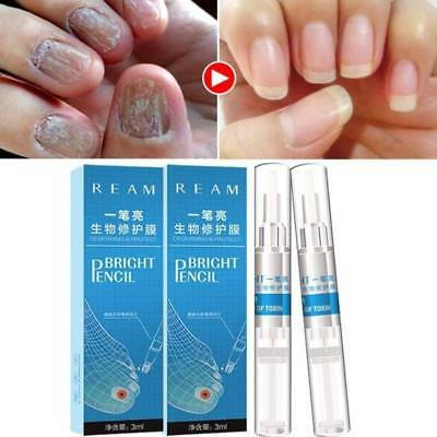 3ml FUNGUS STOP Pencil - Anti Fungal Nail Repair Treatment Toenails Fingernails