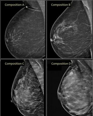 X-Ray Film of breasts mammography breast cancer awareness month special!