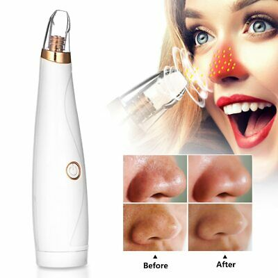 Blackhead Remover Face Deep Pore Cleaner Acne Pimple Removal Vacuum Suction