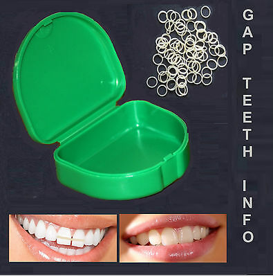 Professional Orthodontic Elastic Bands for Braces Gap Teeth Latex Free All sizes