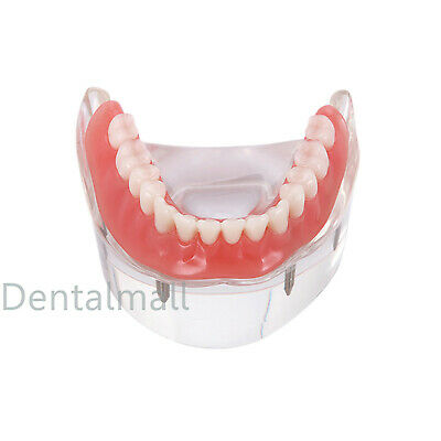 Dental Tooths Model Overdenture Inferior with 4 Implants Demo #6002-02