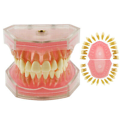Dental TYPODONT Model Standard Model with Removable Teeth #4004