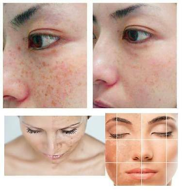 Skin lightening whitening Face Body cream brown pigmentary patches UV Protection