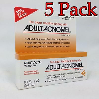 Acnomel Adult Acne Medication, 1oz, 5 Pack 038485911610T650