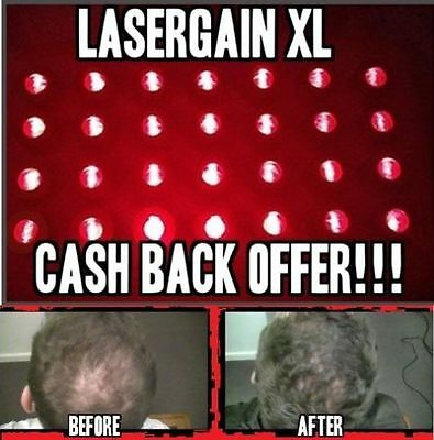 Laser Comb Hair Growth Loss Regrowth Treatment (32x More Power Than Others!)