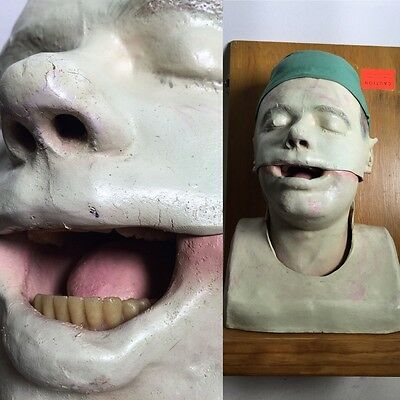 "Vintage Medical Dental 16"" HEAD Model Bust Circa 1950s Realistic Teeth Tongue"