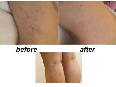 Varicose Spider Thread Veins REMOVAL TREATMENT TROXEVASIN (Troxerutin) gel 2%