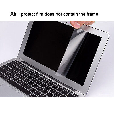 Hot Clear HD Or Frosted Film Screen Protector Shield For Macbook Air Pro Retina