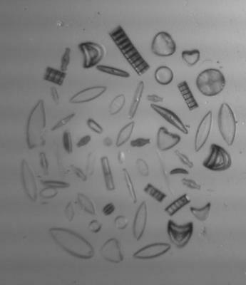 Arranged Group of Various Diatoms from England Microscope Slide by Watson