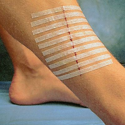 STERILE SKIN  WOUND CLOSURE STRIPS, STERI STRIPS,Butterfly Stitches - 6mm x 75mm