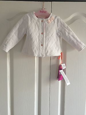 Ted Baker Baby Girls Reversible Jacket. Designer. 3-6 Months. BNWT