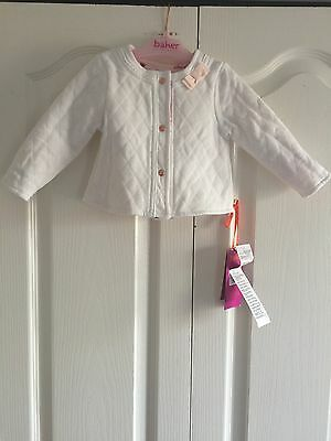 Ted Baker Baby Girls Reversible Jacket. Designer. 9-12 Months. BNWT