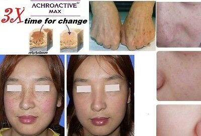 ACHROMIN Whitening Lightening Face Cream Anti dark age spots freckle UV-Protect
