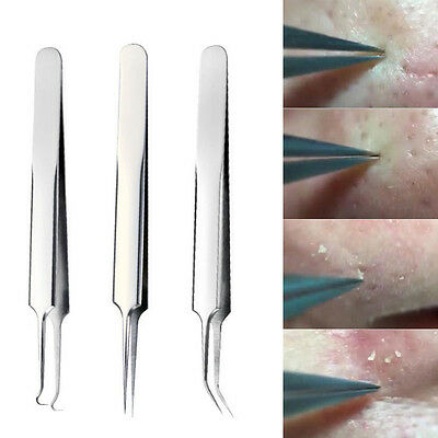 Professional Blackhead Remover Acne Pimple Spot Blemish Comedone Extractor Tools