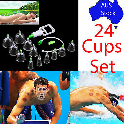 Chinese Cupping Therapy set 24pcs Massage Suction Acupuncture Vacuum Cup medical