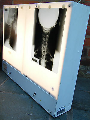 Vintage Large NHS Hospital Double X-Ray Viewer Light Box Working PAT Tested