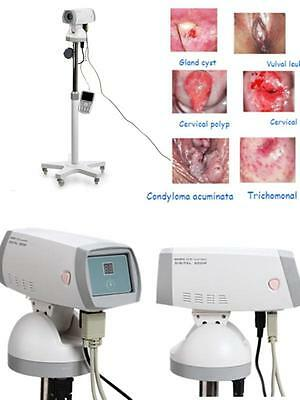 Electronic Colposcope Gynaecology Vaginoscope vaginoscopy-SONY Camera 830,000 AA