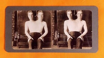 Conjoined(siamese) twins stereoview format~2 heads~ 1 body~ 2 headed man