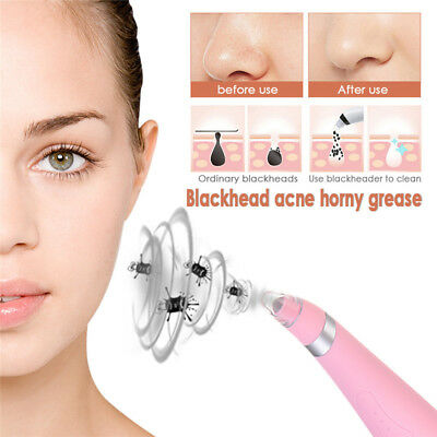Electronic Facial Skin Care Pore Blackhead Remover Cleaner Vacuum Acne Cleanser