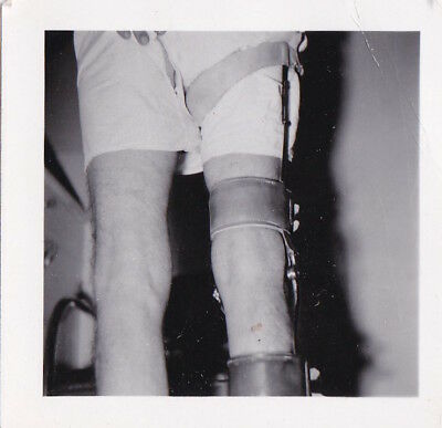 Orig Snapshot Silver Photograph Lot 2 America Medical Leg Braces Back Ortho 1940