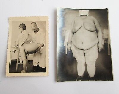 c.1930 PAIR ANTIQUE SHOCKING MEDICAL ODDITY TERRIBLE CASE REAL PHOTO PHOTOGRAPH